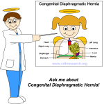 Congenital Diaphragmatic Hernia Educational Items