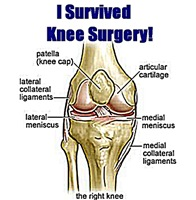 I Survived Knee Surgery! 10
