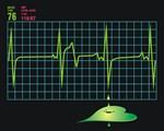 EKG, Electrocardiogram Monitor