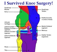 I Survived Knee Surgery! 12