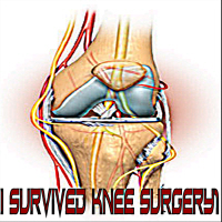 I Survived Knee Surgery! 4