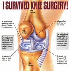 I Survived Knee Surgery! 1