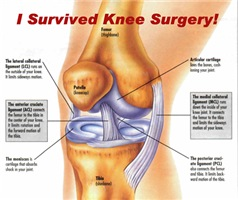 I Survived Knee Surgery! 11