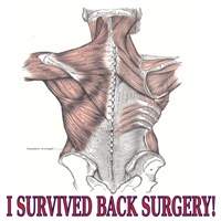 I Survived Back Surgery! 2