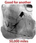 Cardiac Resynchronization