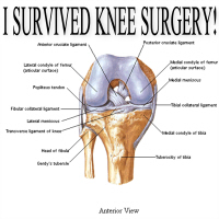 I Survived Knee Surgery! 3