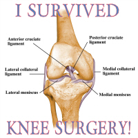 I Survived Knee Surgery! 2