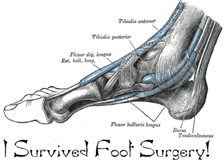 I Survived Foot Surgery!