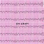 Cardiac V-Fib