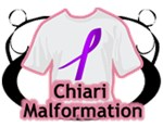 Chiari Malformation Shirts and Merchandise