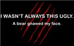 A bear gnawed my face!