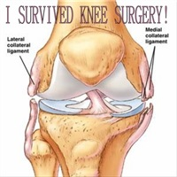 I Survived Knee Surgery! 7