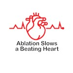 Ablation Slows A Beating Heart ™ 02