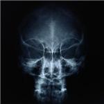 Cranial X-Ray