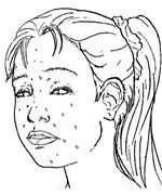 Crustina - Sketched Image