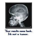 It's not a tumor.