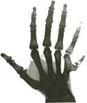 Six-Fingered-X-Ray