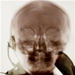 X-ray Portrait in Sepia Tone