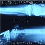 Motorcycle awareness x-ray